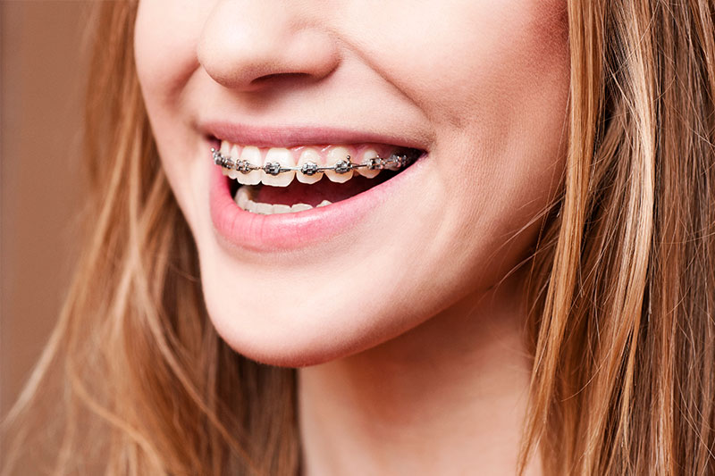 Braces & Orthodontics - High Sierra Dental Care, South Lake Tahoe Dentist